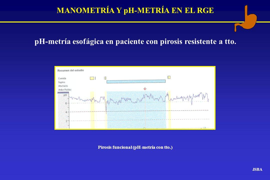 MANOMETRÍA Y pH-METRÍA EN EL RGE JSBA pH-metría esofágica en paciente con pirosis resistente a tto. Pirosis funcional (pH-metría con tto.)