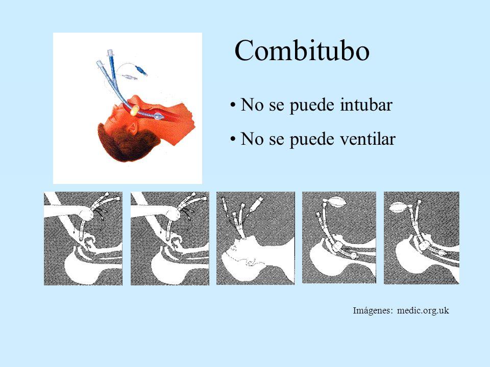 No se puede intubar No se puede ventilar Combitubo Imágenes: medic.org.uk
