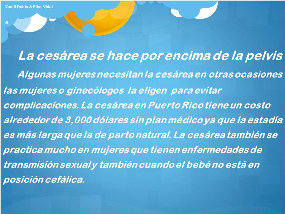 Bibliografía http://www.lindisima.com/embarazada/cesareas.