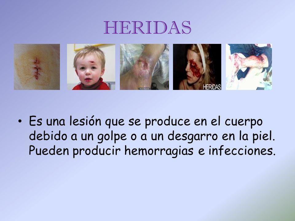 HERIDAS Es una lesión que se produce en el cuerpo debido a un golpe o a un desgarro en la piel. Pueden producir hemorragias e infecciones.