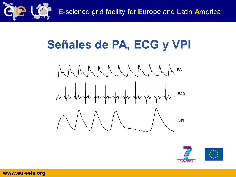 www.eu-eela.org E-science grid facility for Europe and Latin America Señales de PA, ECG y VPI