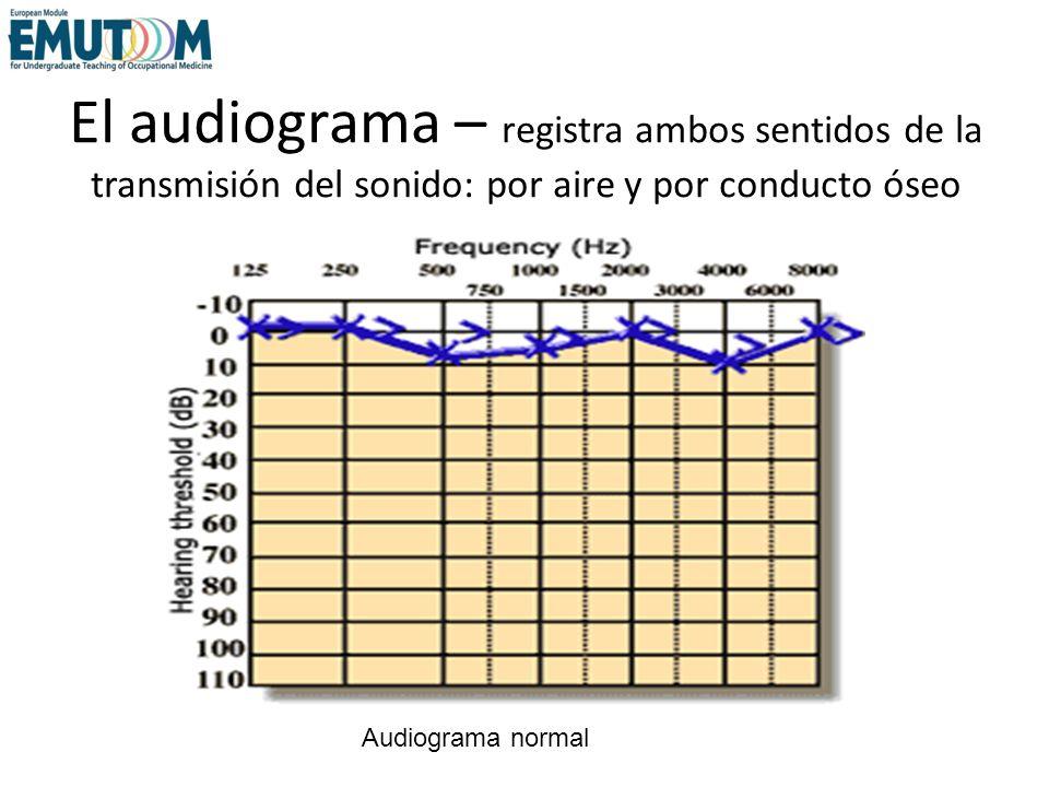 El audiograma – registra ambos sentidos de la transmisión del sonido: por aire y por conducto óseo Audiograma normal
