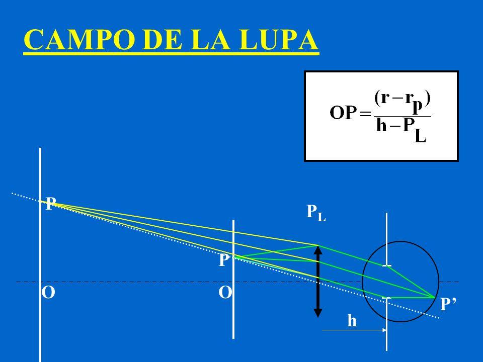 CAMPO DE LA LUPA P P OO P PLPL h