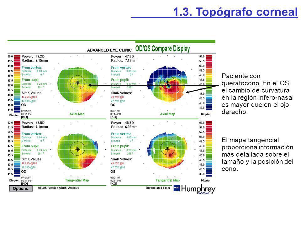 Paciente con queratocono. En el OS, el cambio de curvatura en la región infero-nasal es mayor que en el ojo derecho. El mapa tangencial proporciona in