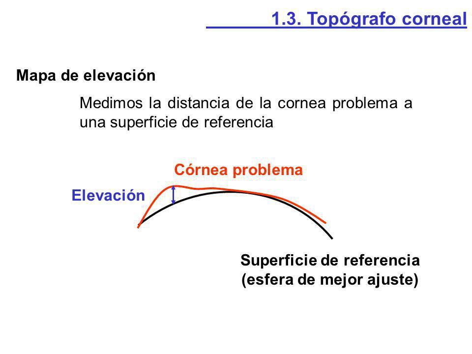 Mapa de elevación 1.3. Topógrafo corneal Medimos la distancia de la cornea problema a una superficie de referencia Superficie de referencia (esfera de