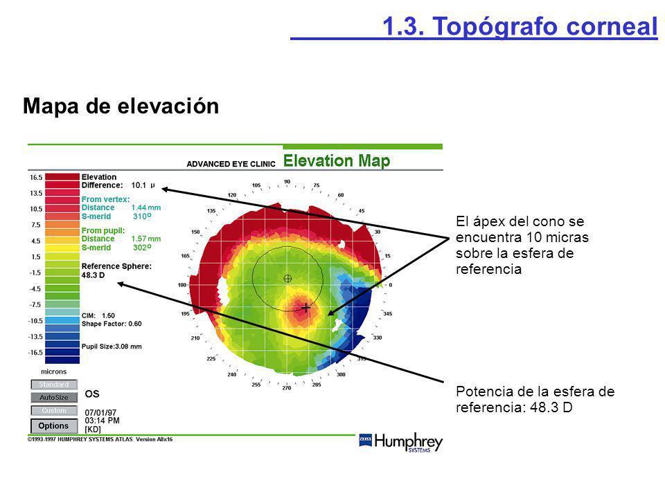 El ápex del cono se encuentra 10 micras sobre la esfera de referencia Potencia de la esfera de referencia: 48.3 D Mapa de elevación 1.3. Topógrafo cor