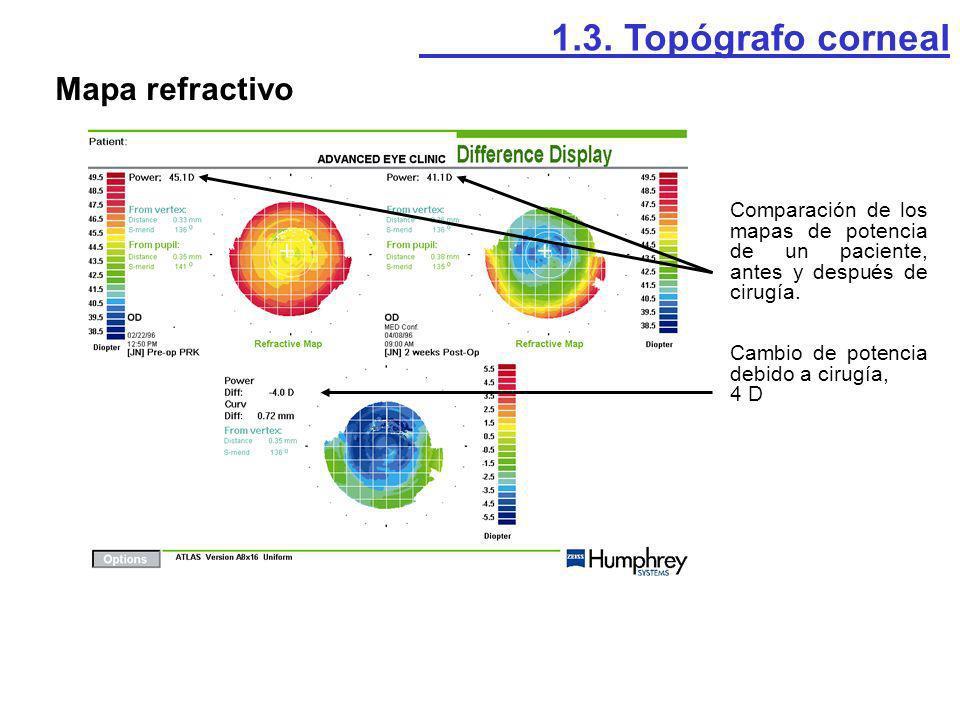 1.3. Topógrafo corneal Mapa refractivo Comparación de los mapas de potencia de un paciente, antes y después de cirugía. Cambio de potencia debido a ci