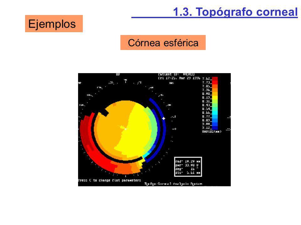 Ejemplos Córnea esférica 1.3. Topógrafo corneal