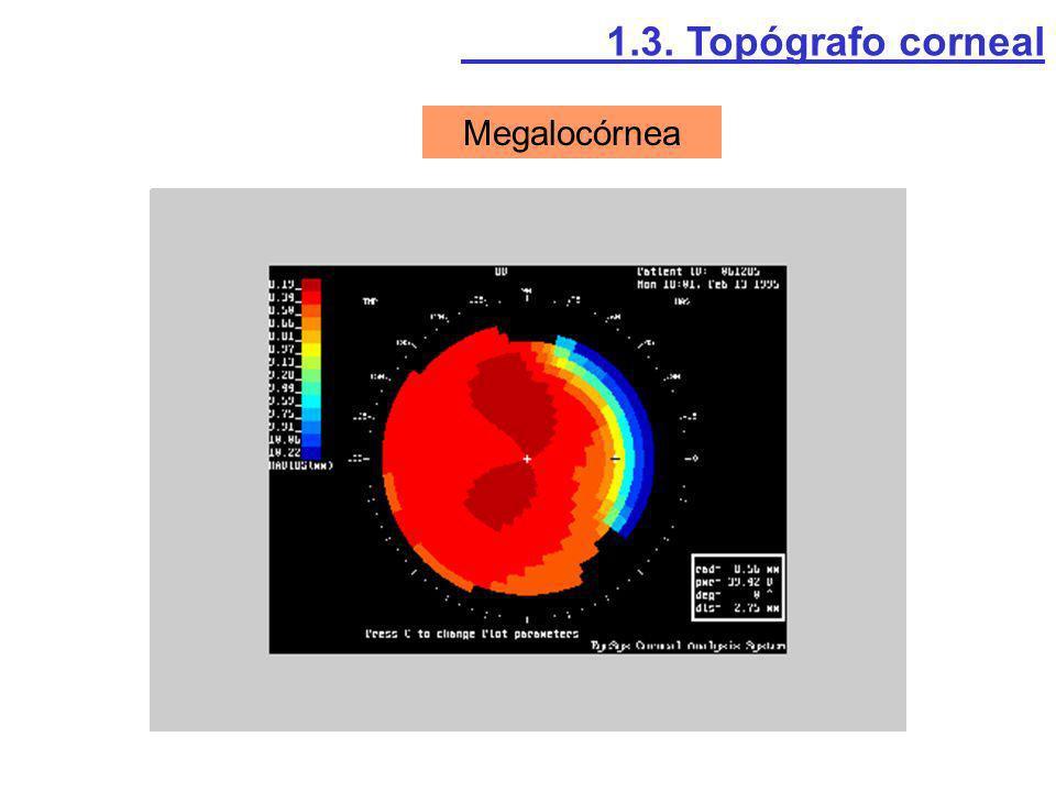 Megalocórnea 1.3. Topógrafo corneal