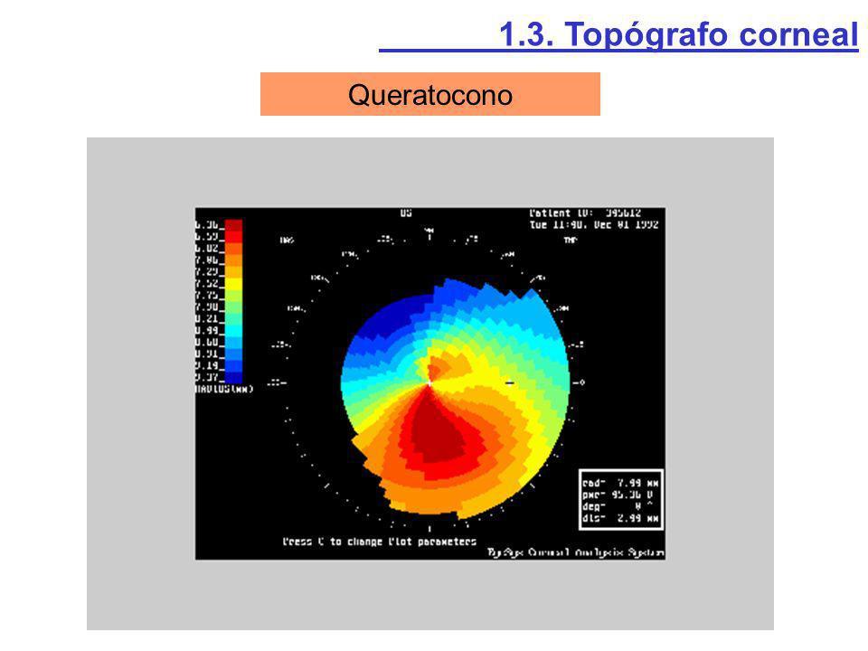 Queratocono 1.3. Topógrafo corneal