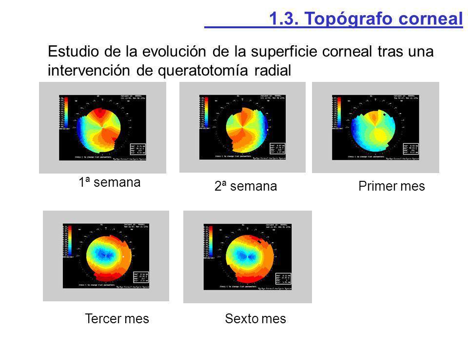 Estudio de la evolución de la superficie corneal tras una intervención de queratotomía radial 1ª semana 2ª semanaPrimer mes Tercer mesSexto mes 1.3. T