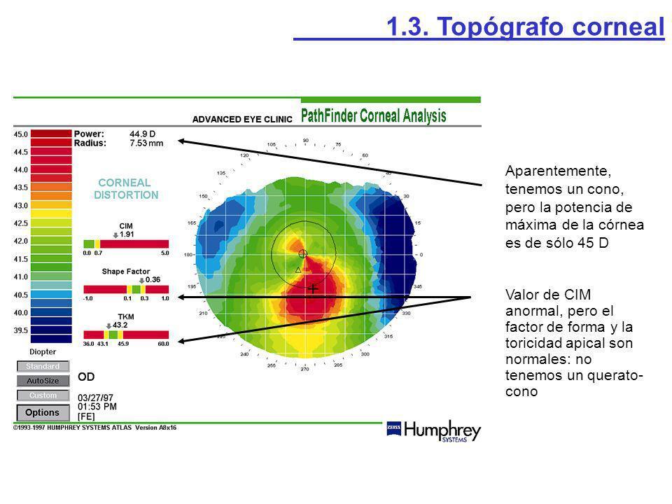 Aparentemente, tenemos un cono, pero la potencia de máxima de la córnea es de sólo 45 D Valor de CIM anormal, pero el factor de forma y la toricidad a
