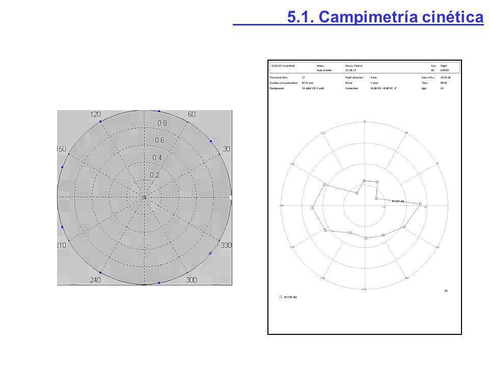 5.1. Campimetría cinética
