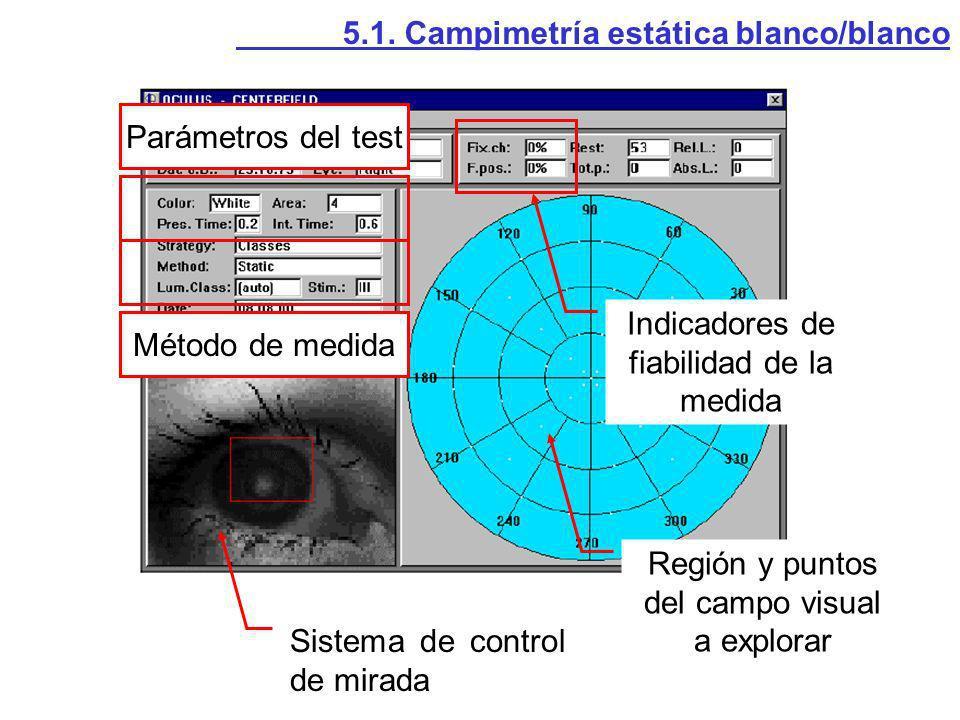 5.1. Campimetría estática blanco/blanco Sistema de control de mirada Parámetros del test Método de medida Indicadores de fiabilidad de la medida Regió