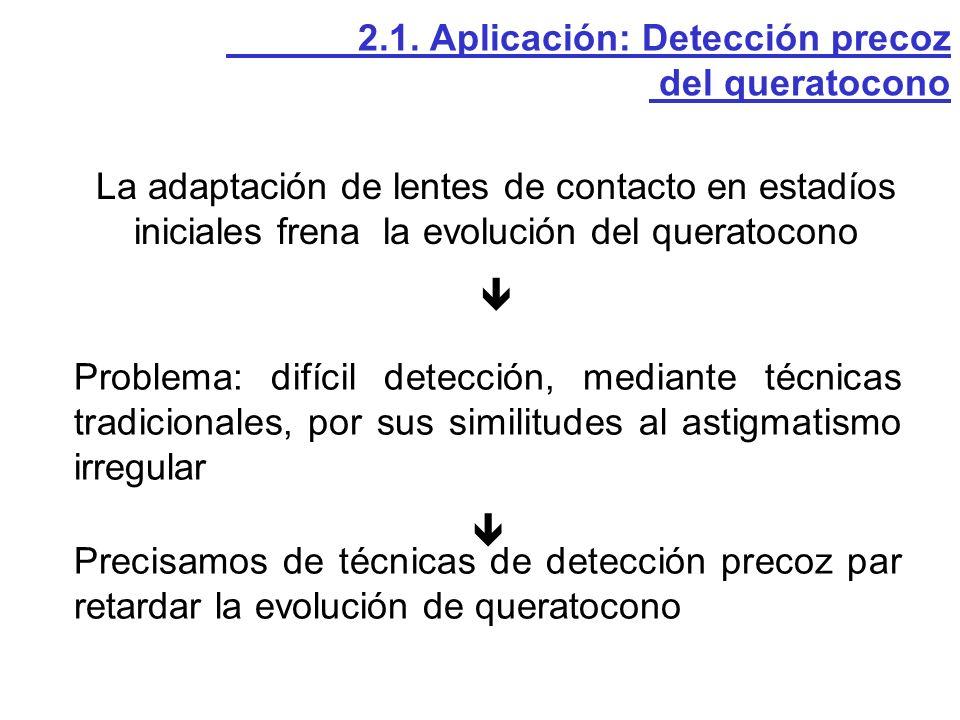 La adaptación de lentes de contacto en estadíos iniciales frena la evolución del queratocono Problema: difícil detección, mediante técnicas tradiciona