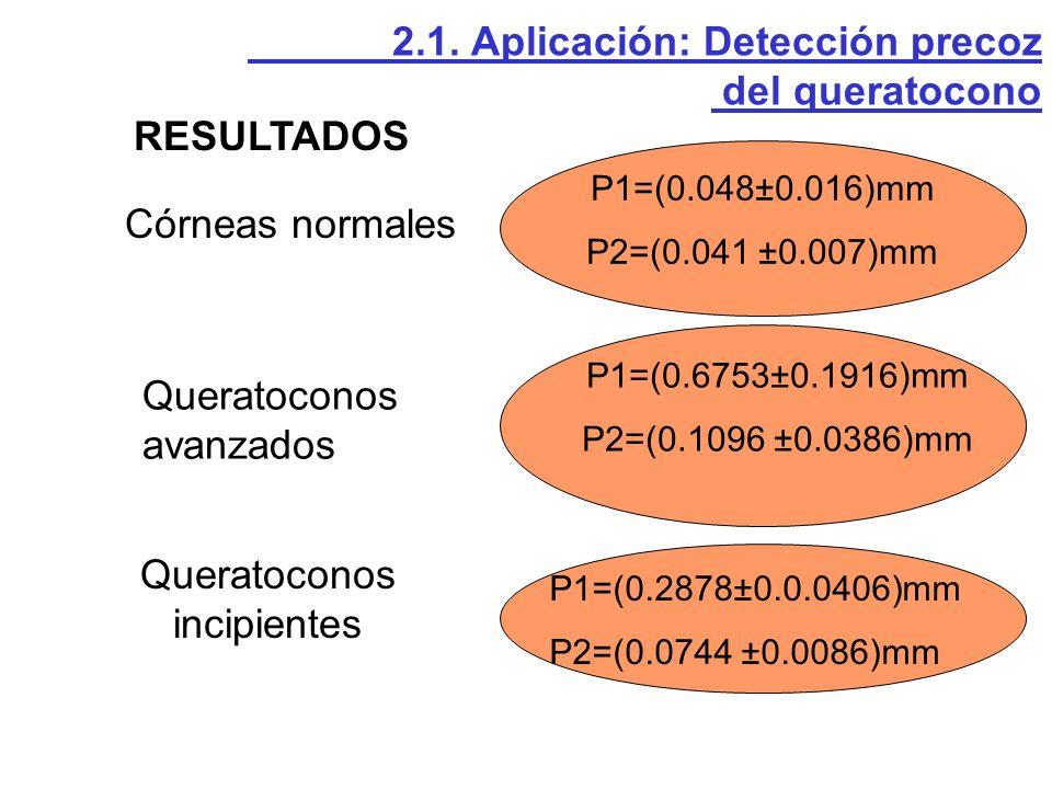 Un sujeto tiene un queratocono en fase incipiente si se cumplen las siguientes condiciones: P1 0.20 mm P2 0.06 mm P1/P2 3 mm 2.1.