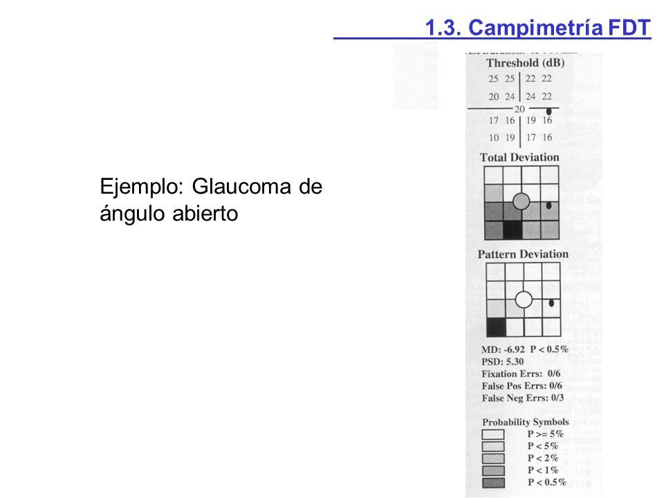 Superficie de detección cromática (Kelly, 1983) 2.