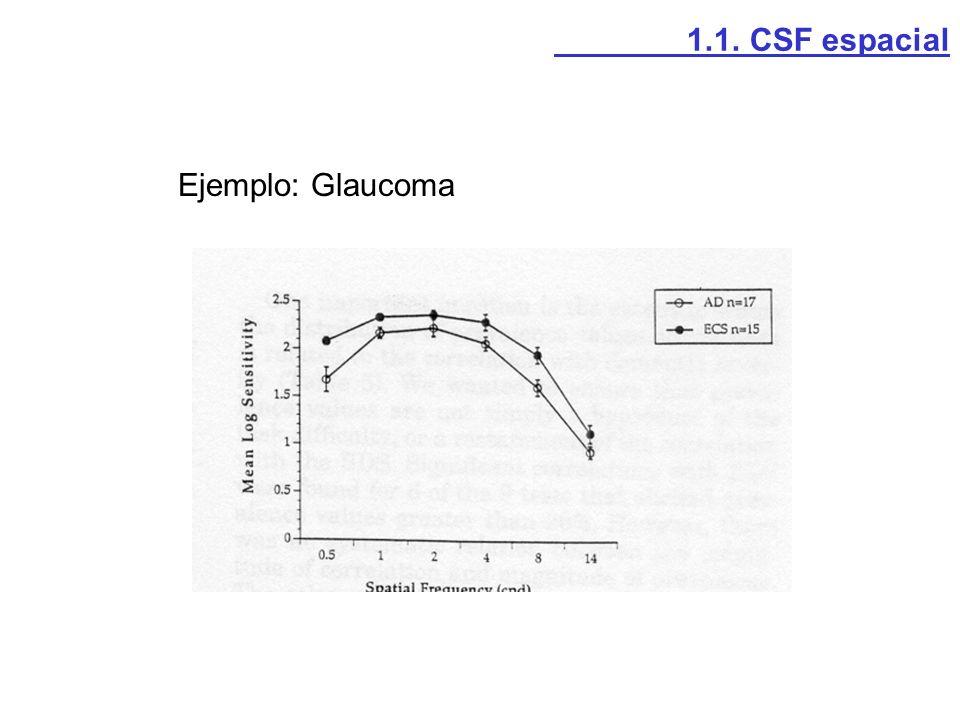 Ejemplo: Neuritis óptica 1.1. CSF espacial