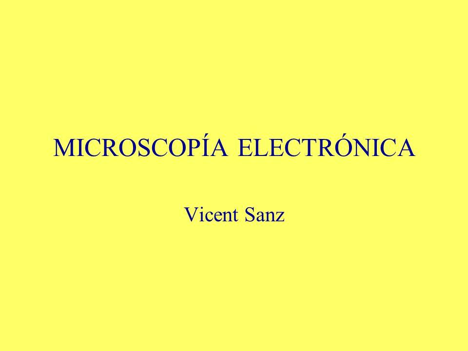 MICROSCOPÍA ELECTRÓNICA Vicent Sanz
