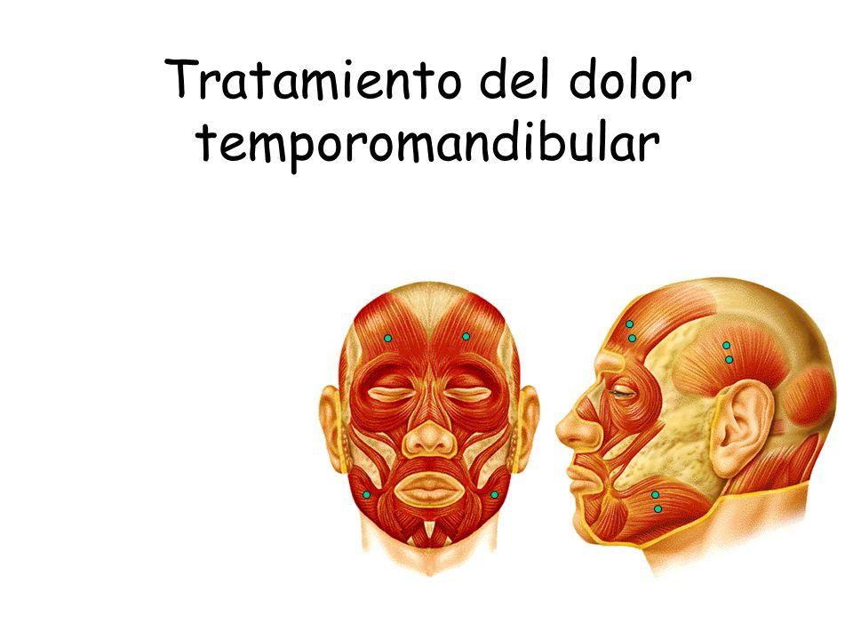 Tratamiento del dolor temporomandibular