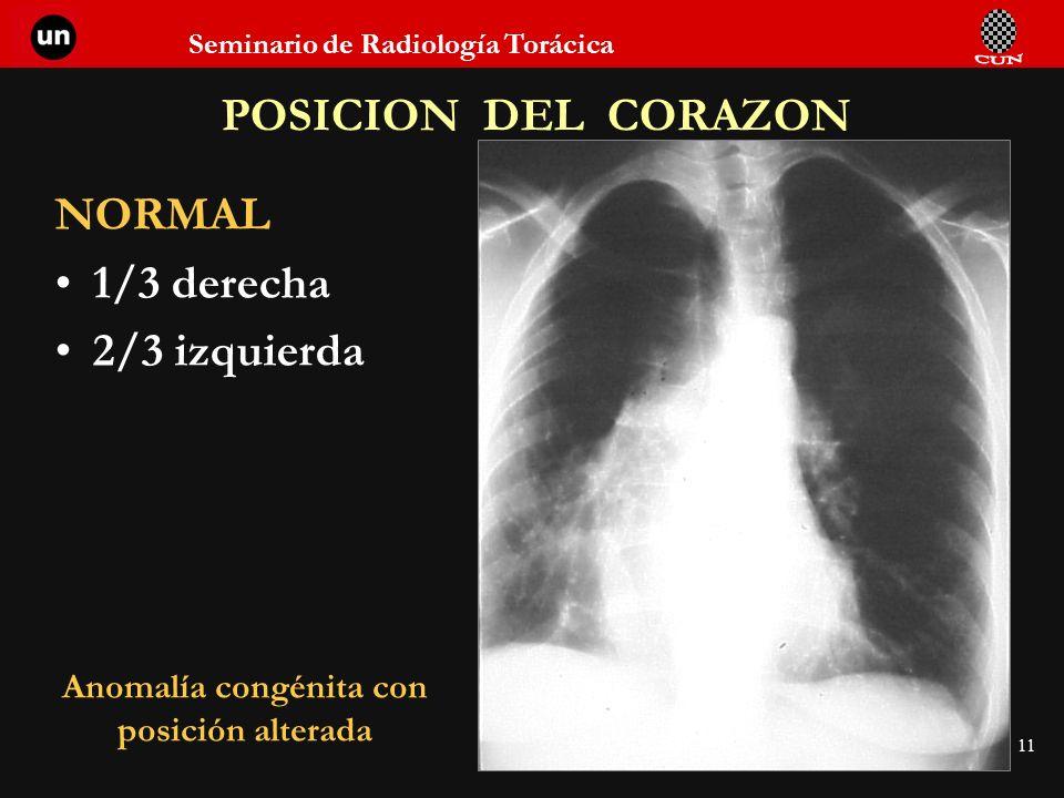 Seminario de Radiología Torácica 11 POSICION DEL CORAZON NORMAL 1/3 derecha 2/3 izquierda Anomalía congénita con posición alterada