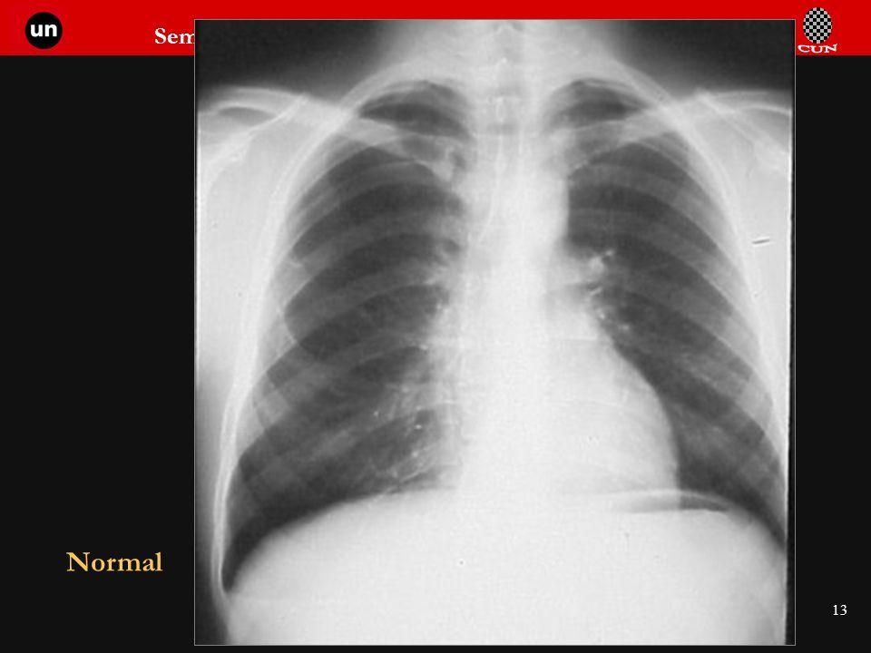 Seminario de Radiología Torácica 13 Normal