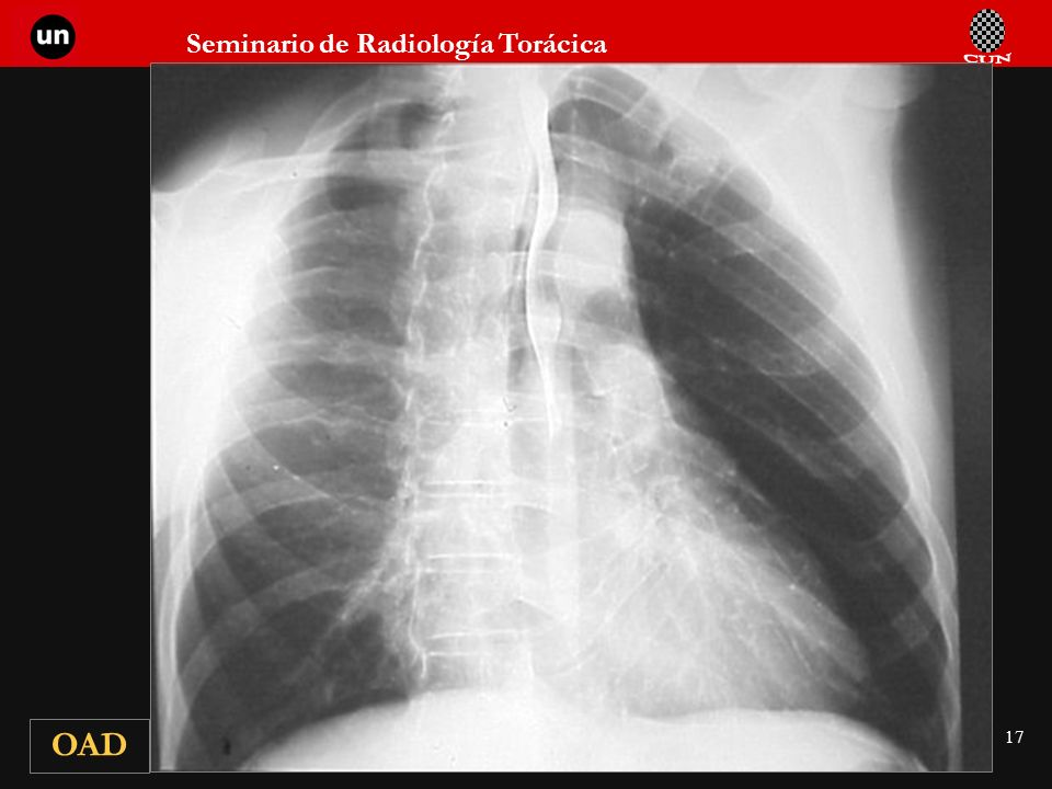 Seminario de Radiología Torácica 17 OAD