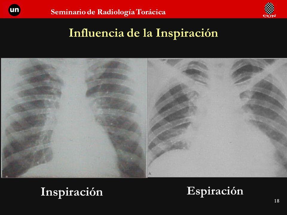 Seminario de Radiología Torácica 18 Influencia de la Inspiración Inspiración Espiración
