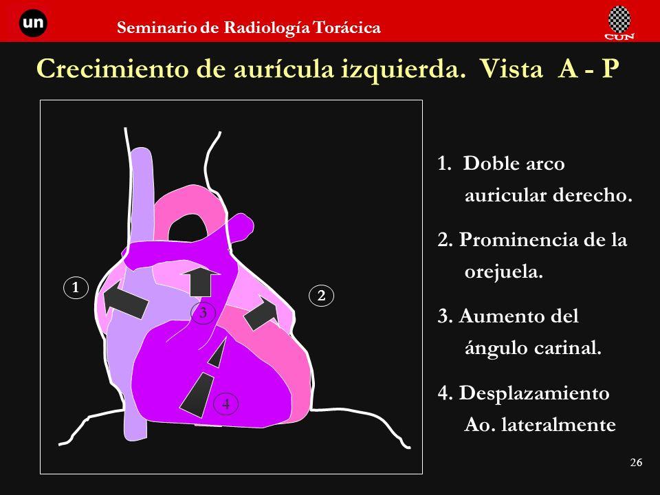 Seminario de Radiología Torácica 26 Crecimiento de aurícula izquierda. Vista A - P 1. Doble arco auricular derecho. 2. Prominencia de la orejuela. 3.