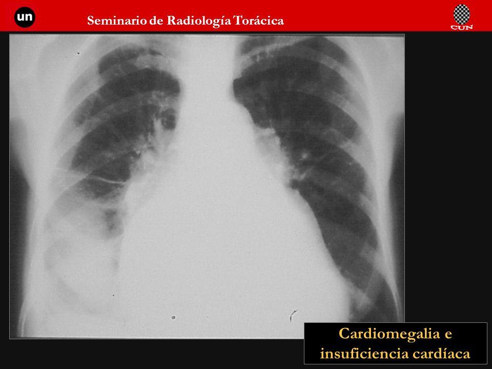 Seminario de Radiología Torácica 27 Cardiomegalia e insuficiencia cardíaca