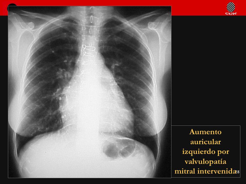 Seminario de Radiología Torácica 28 Aumento auricular izquierdo por valvulopatía mitral intervenida