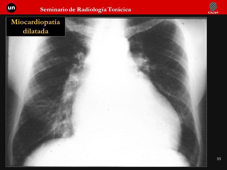Seminario de Radiología Torácica 33 Miocardiopatía dilatada