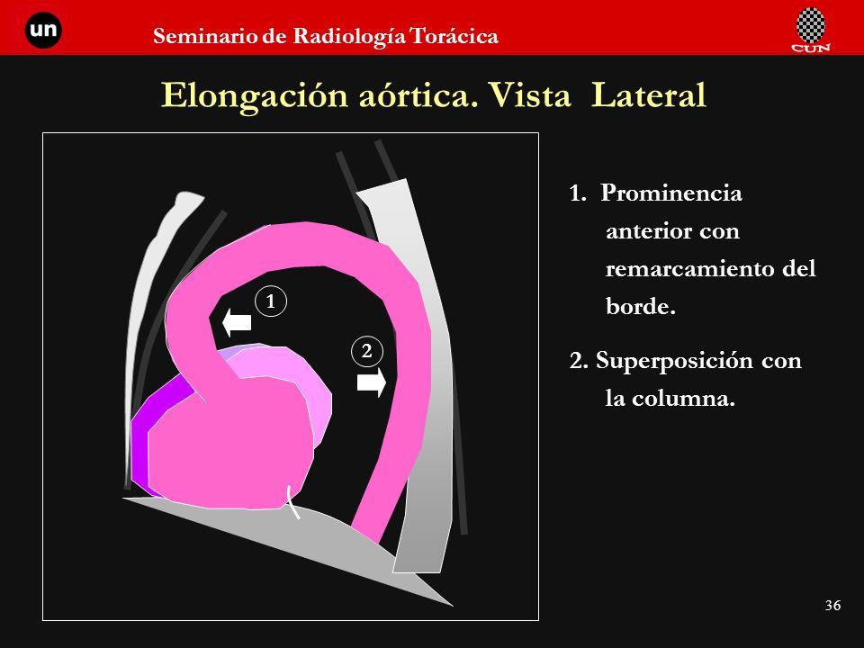 Seminario de Radiología Torácica 36 Elongación aórtica. Vista Lateral 1. Prominencia anterior con remarcamiento del borde. 2. Superposición con la col