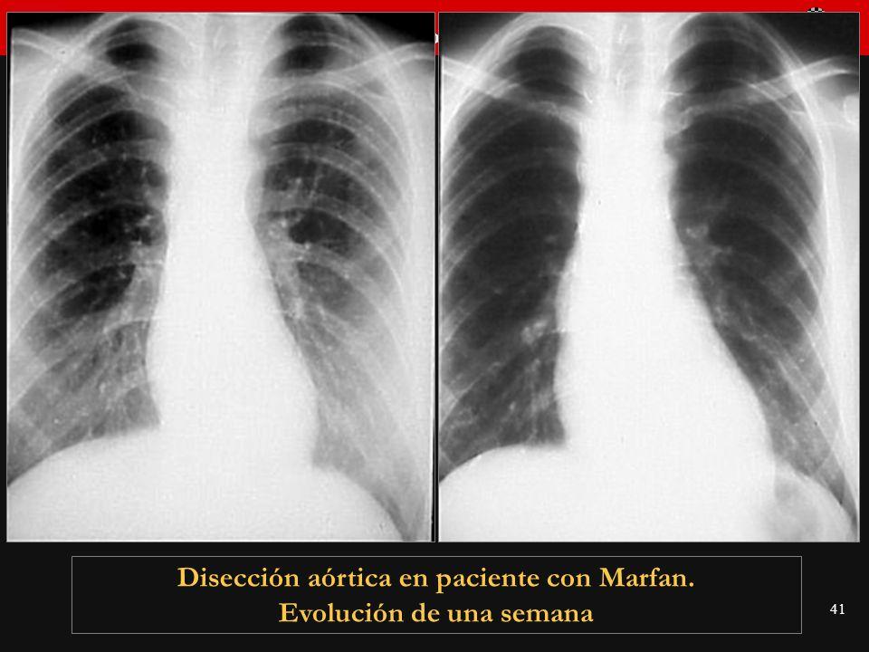 Seminario de Radiología Torácica 41 Disección aórtica en paciente con Marfan. Evolución de una semana