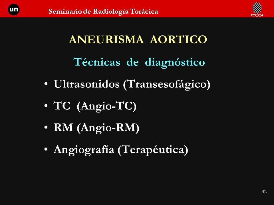 Seminario de Radiología Torácica 42 ANEURISMA AORTICO Técnicas de diagnóstico Ultrasonidos (Transesofágico) TC (Angio-TC) RM (Angio-RM) Angiografía (T