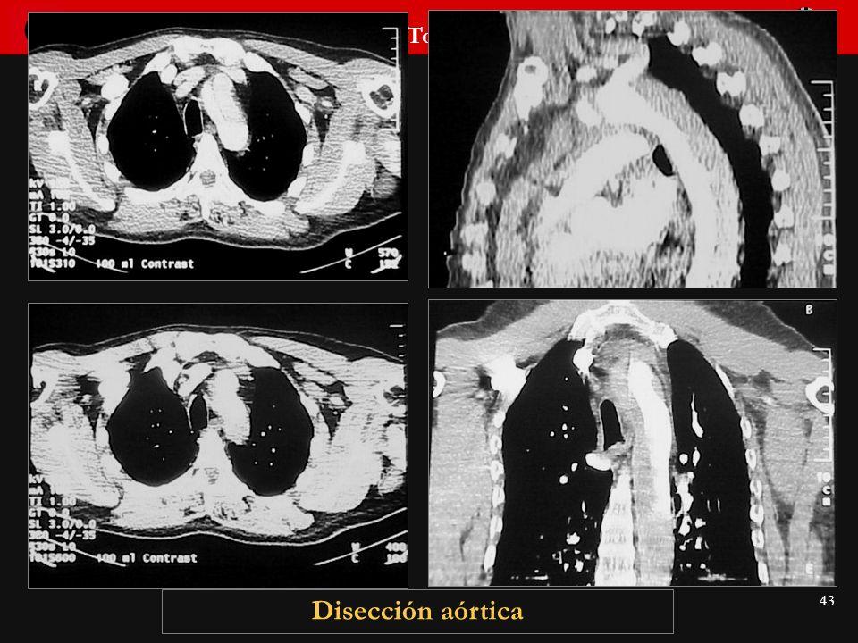 Seminario de Radiología Torácica 43 Disección aórtica