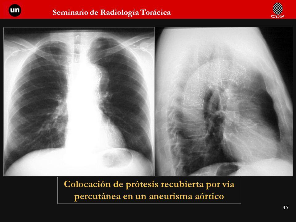 Seminario de Radiología Torácica 45 Colocación de prótesis recubierta por vía percutánea en un aneurisma aórtico