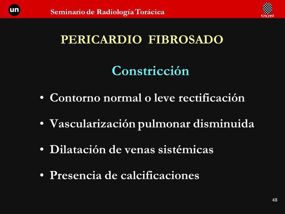 Seminario de Radiología Torácica 48 PERICARDIO FIBROSADO Constricción Contorno normal o leve rectificación Vascularización pulmonar disminuida Dilatac
