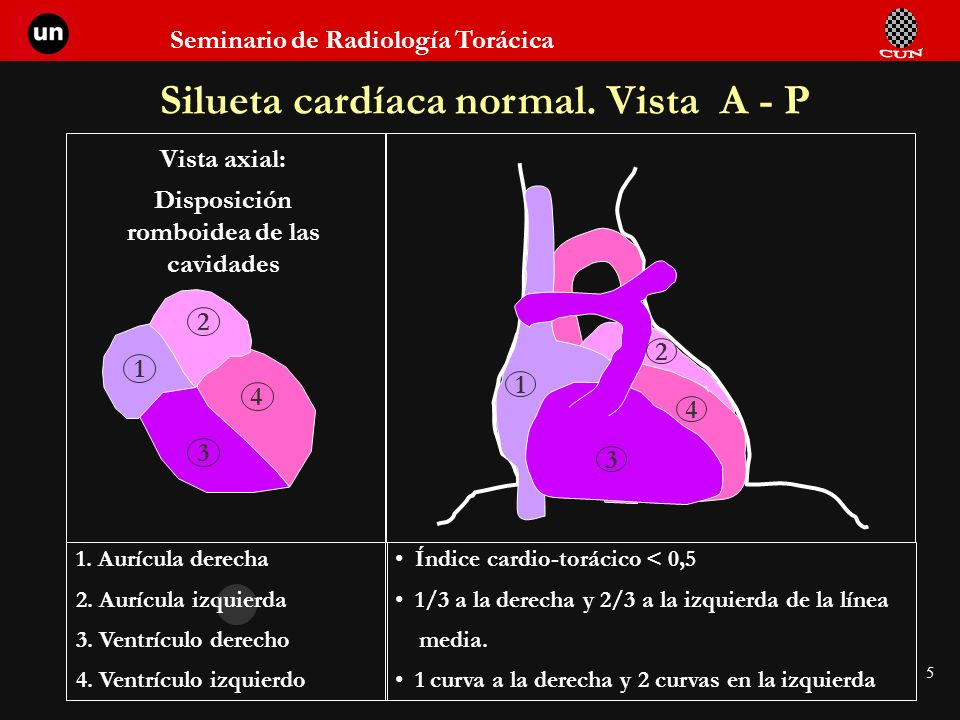 Seminario de Radiología Torácica 5 Silueta cardíaca normal. Vista A - P 1. Aurícula derecha 2. Aurícula izquierda 3. Ventrículo derecho 4. Ventrículo
