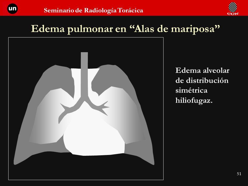 Seminario de Radiología Torácica 51 Edema pulmonar en Alas de mariposa Edema alveolar de distribución simétrica hiliofugaz.