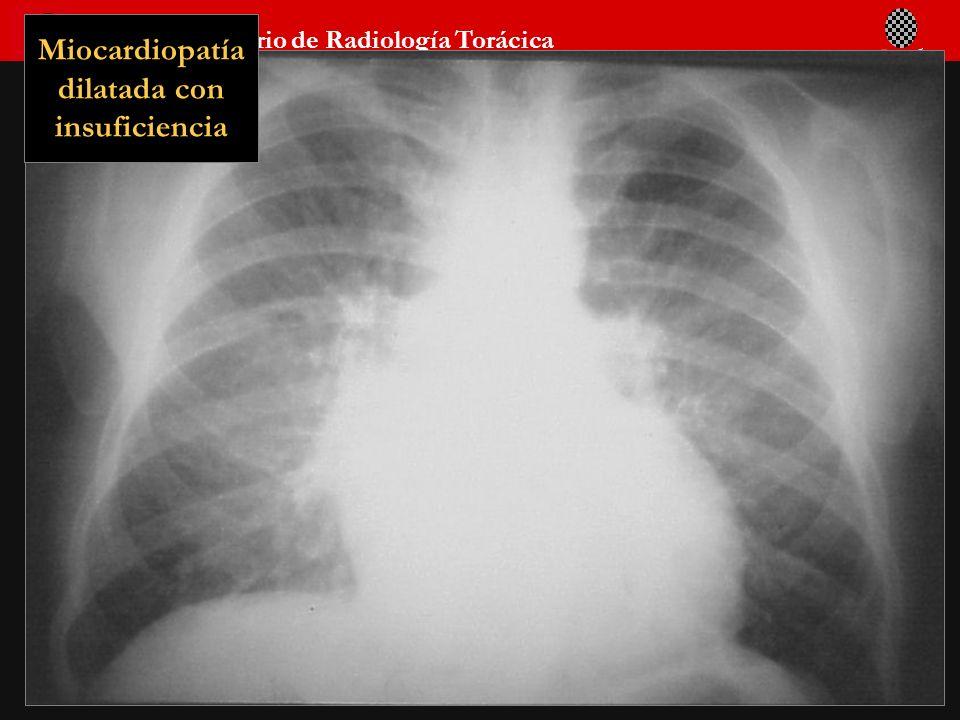 Seminario de Radiología Torácica 53 Miocardiopatía dilatada con insuficiencia