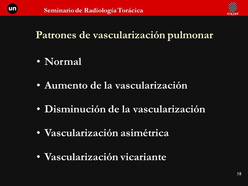 Seminario de Radiología Torácica 58 Patrones de vascularización pulmonar Normal Aumento de la vascularización Disminución de la vascularización Vascul