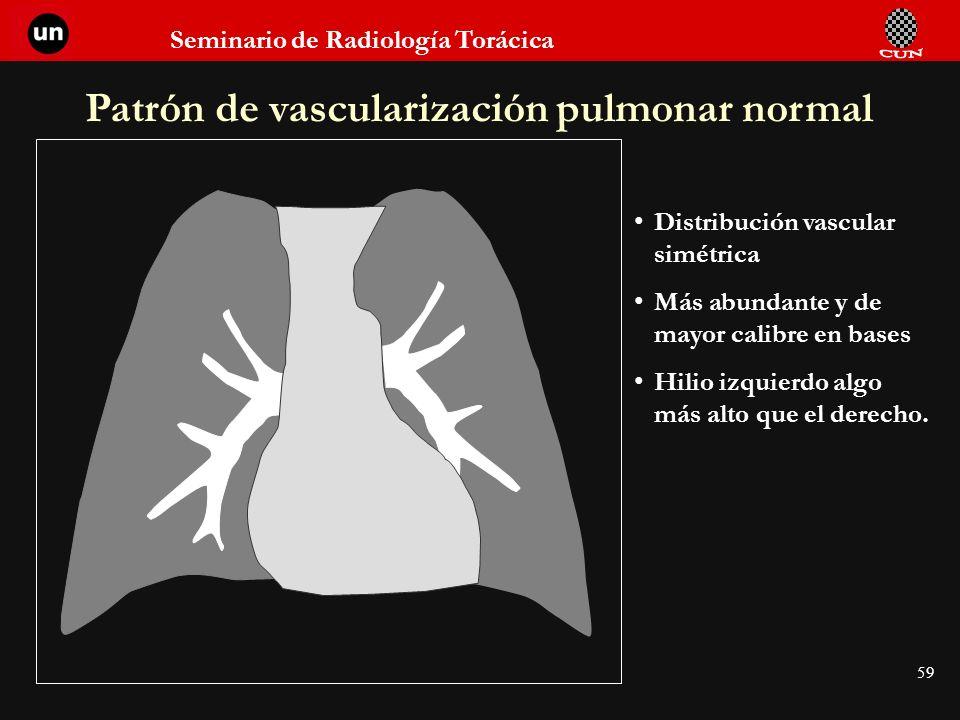 Seminario de Radiología Torácica 59 Patrón de vascularización pulmonar normal Distribución vascular simétrica Más abundante y de mayor calibre en base