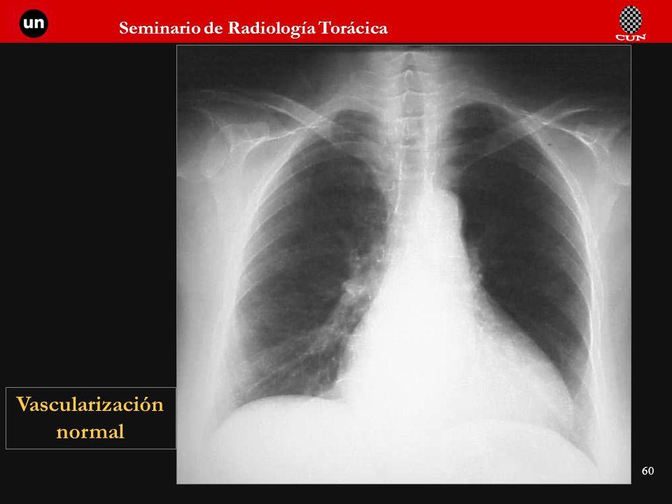 Seminario de Radiología Torácica 60 Vascularización normal