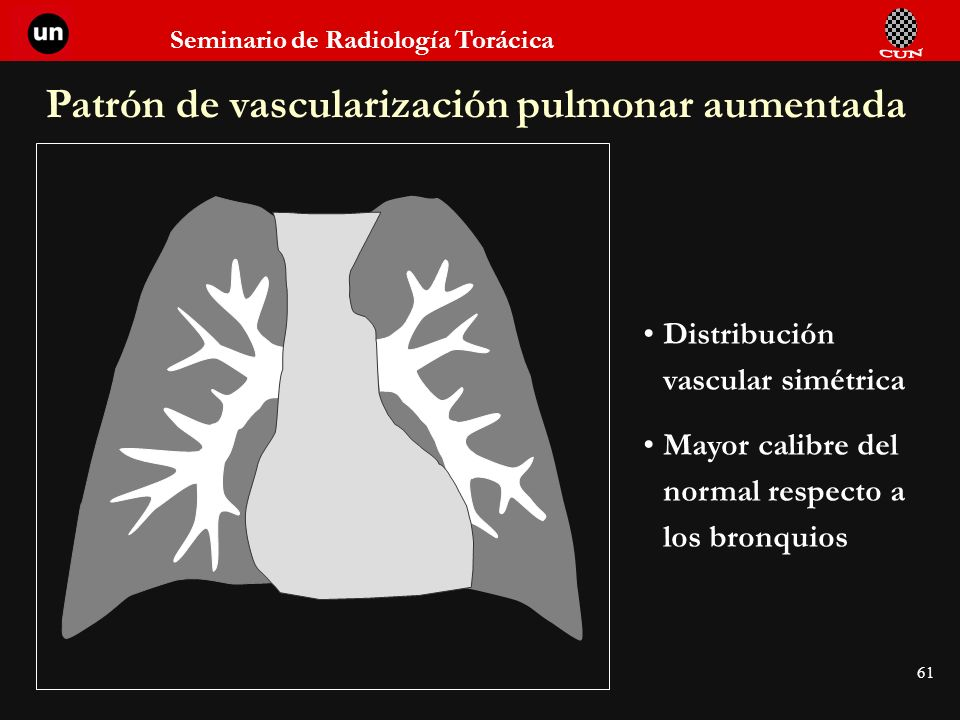 Seminario de Radiología Torácica 61 Patrón de vascularización pulmonar aumentada Distribución vascular simétrica Mayor calibre del normal respecto a l
