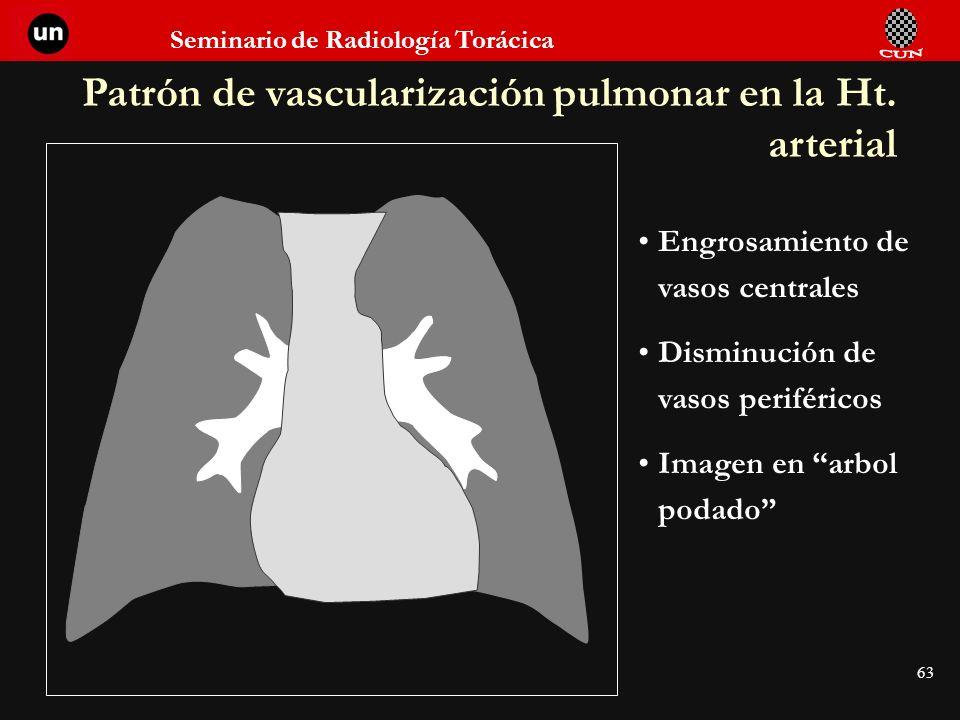 Seminario de Radiología Torácica 63 Patrón de vascularización pulmonar en la Ht. arterial Engrosamiento de vasos centrales Disminución de vasos perifé