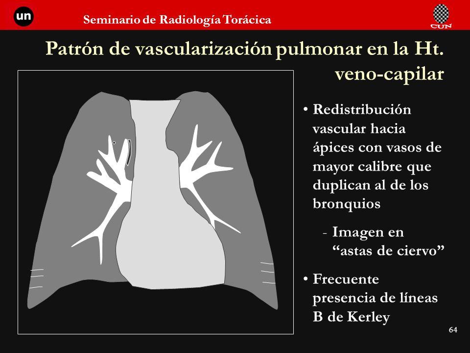 Seminario de Radiología Torácica 64 Patrón de vascularización pulmonar en la Ht. veno-capilar Redistribución vascular hacia ápices con vasos de mayor