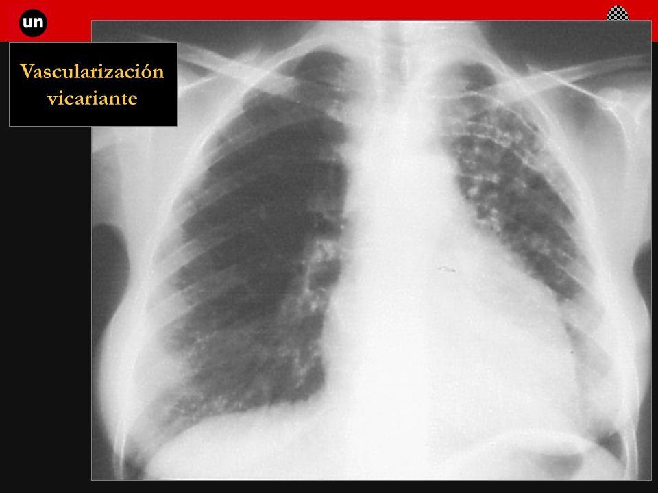 Seminario de Radiología Torácica 73 Vascularización vicariante