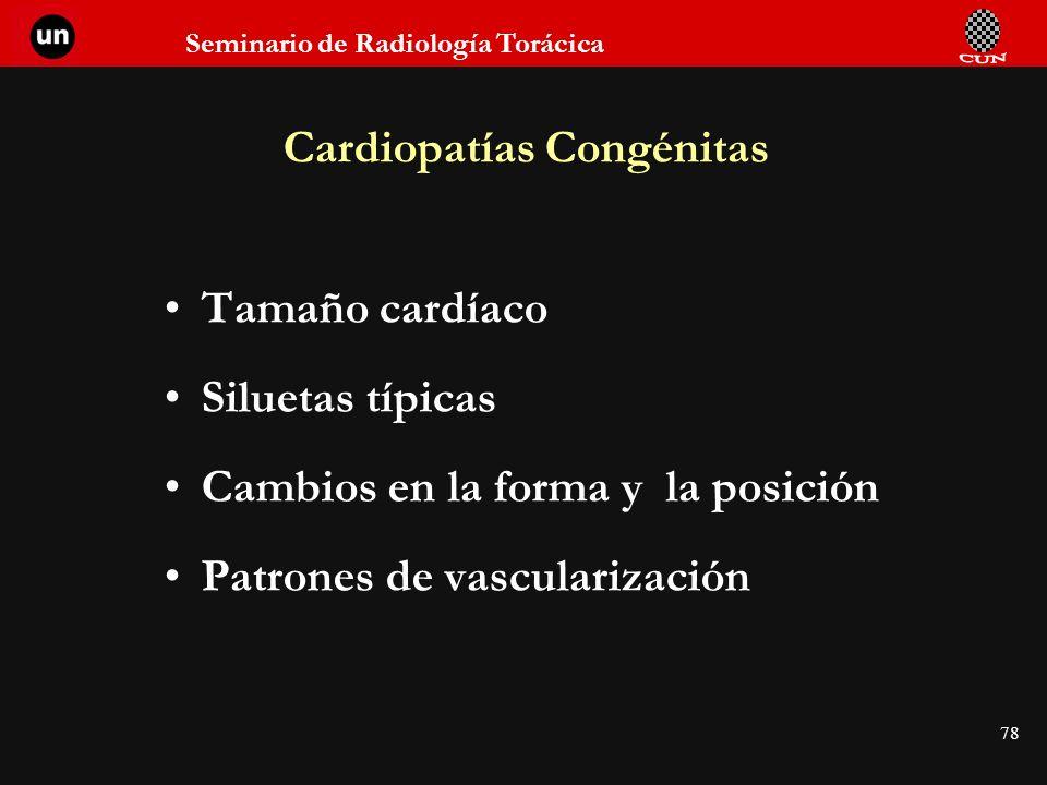 Seminario de Radiología Torácica 78 Cardiopatías Congénitas Tamaño cardíaco Siluetas típicas Cambios en la forma y la posición Patrones de vasculariza