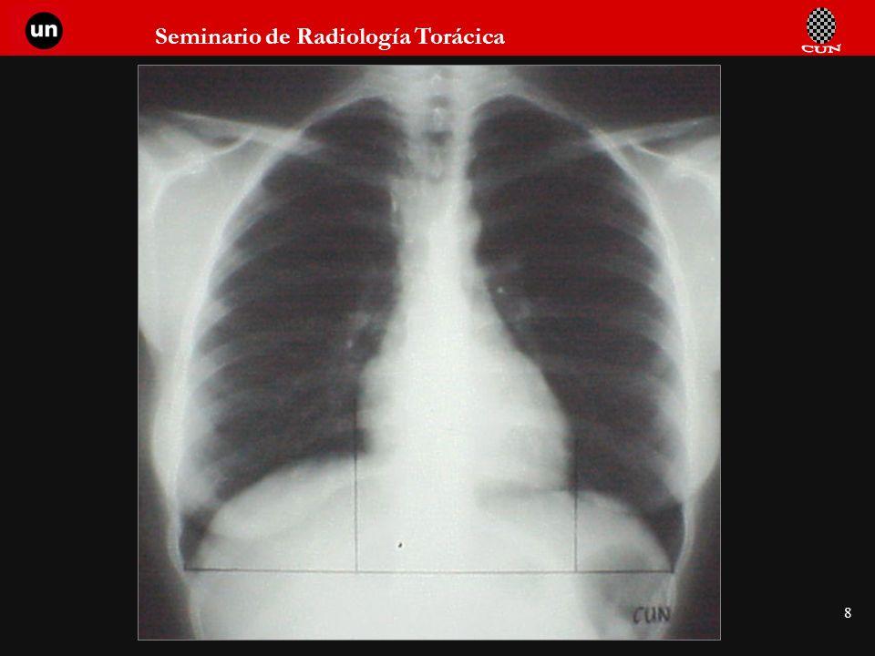 Seminario de Radiología Torácica 59 Patrón de vascularización pulmonar normal Distribución vascular simétrica Más abundante y de mayor calibre en bases Hilio izquierdo algo más alto que el derecho.